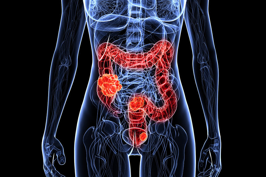 Gastrointestinal Cancer