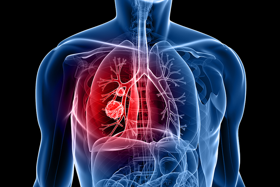 Lung and Thoracic Cancer