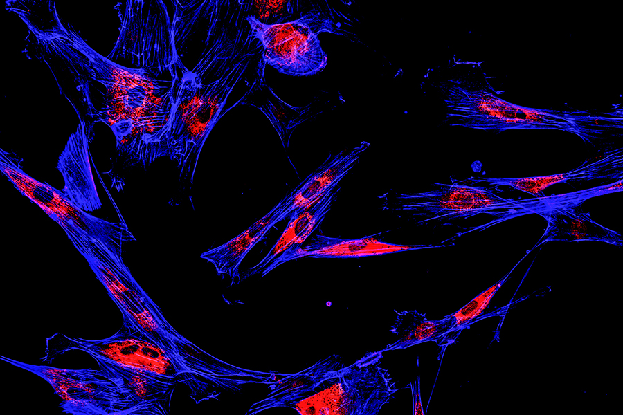 Immunofluorescence confocal imaging of melanoma cancer cells