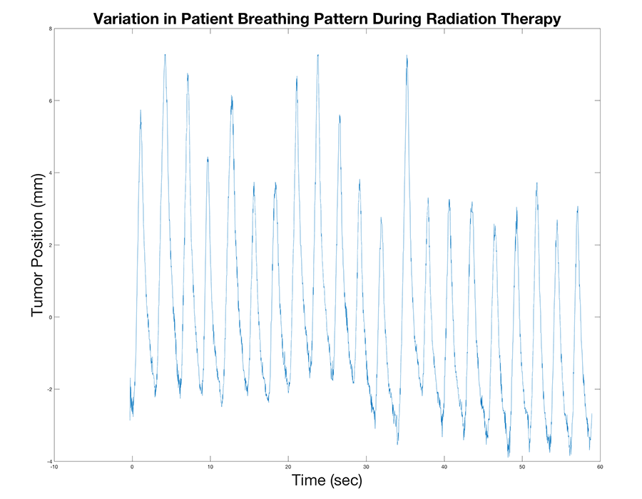 graphical depiction of variation in patient breathing pattern during radiation treatment