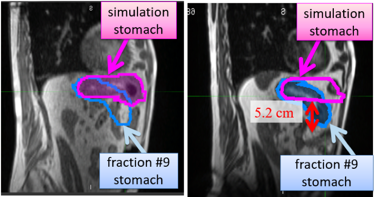 Example of interfraction stomach change from the simulation (left) to fraction #9 treatment (right) in which adaptive radiotherapy was warranted.