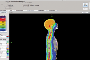 Tomotherapy treatment planning