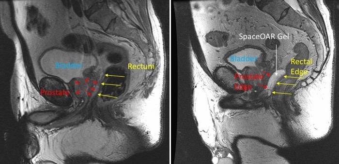 Reducing Side Effects During Radiotherapy For Prostate