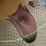 woman wears plastic mask used for stereotactic radiosurgery