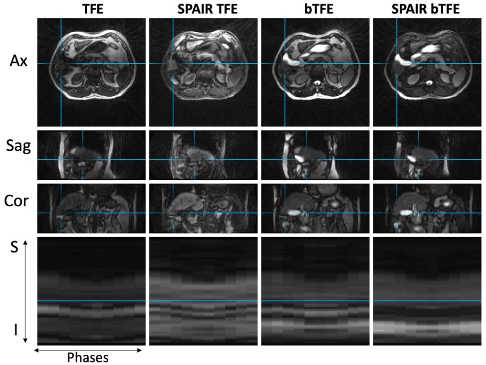 4D-MRI images