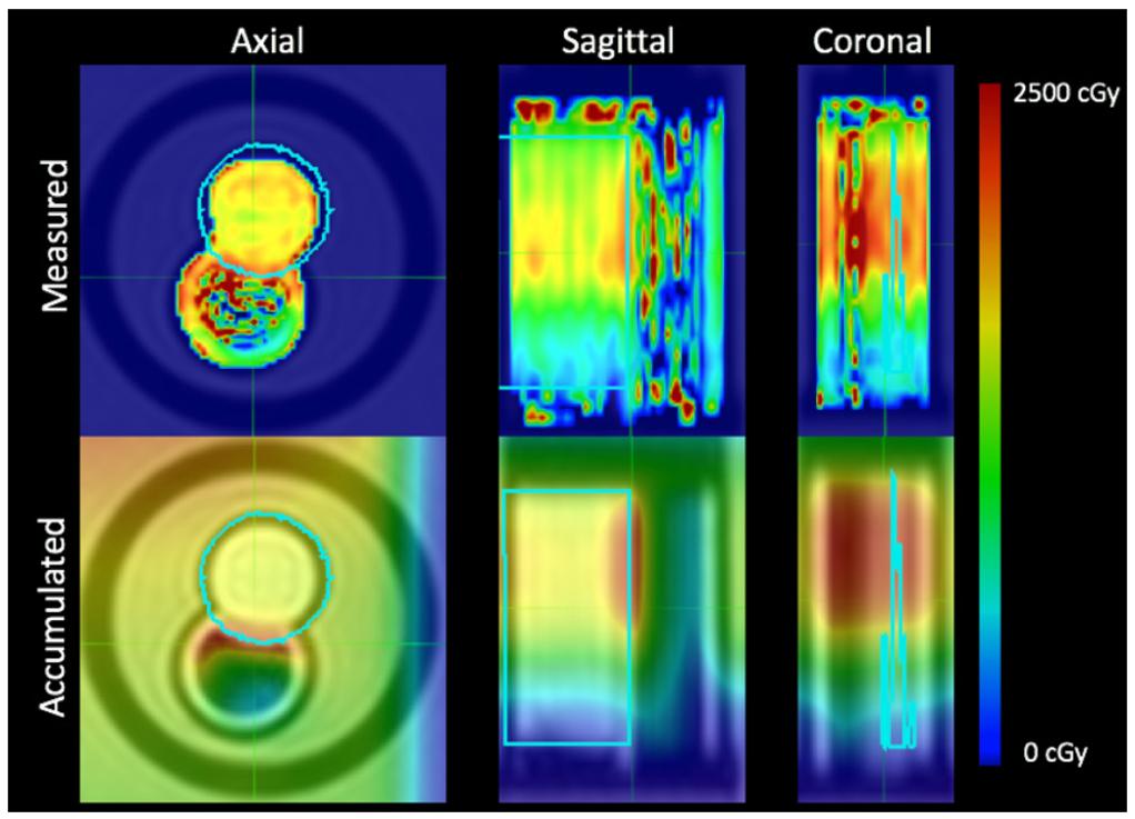 Measured 3D dose distributions