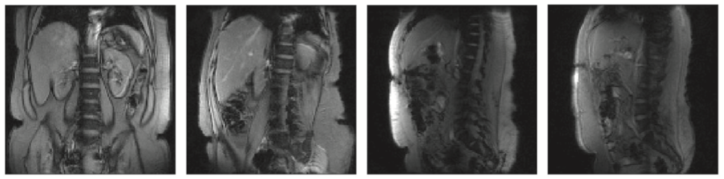 Four abdominal imaging slices at different orientations between Coronal and Sagittal